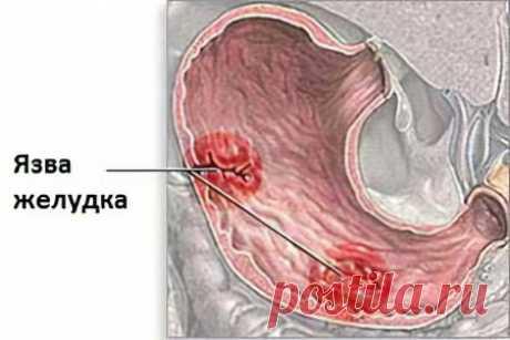 Лекарства от язвы желудка - полный список лекарств от язвы желудка