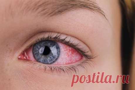 Покраснение глаза – что это значит? Причины и лечение у взрослых и детей
