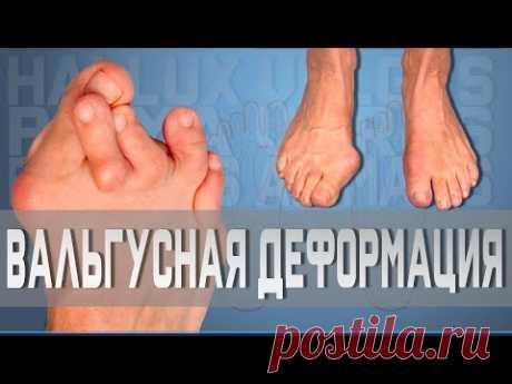 Вальгусная деформация большого пальца | Доктор Демченко