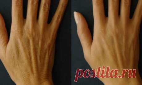 5 способов разгладить и омолодить кожу рук в домашних условиях Каждая женщина с возрастом замечает, что кожа её рук ухудшается и временами находится не в лучшем состоянии: чаще становится сухой, на руках появляются морщины и складки.