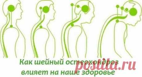 Болит шея? Как шейный остеохондроз влияет на наше состояние