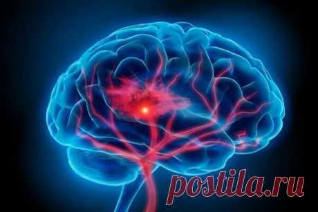 4 заболевания, которые атакуют мозг необратимым образом