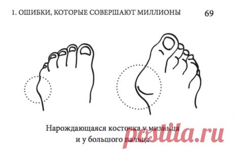 Для чего организм выращивает косточку у большого пальца и как это прекратить?   Главврач   Яндекс Дзен