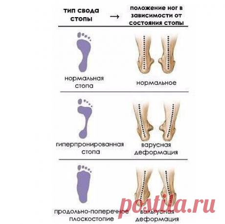 Комплекс упражнений для лечения плоскостопия.