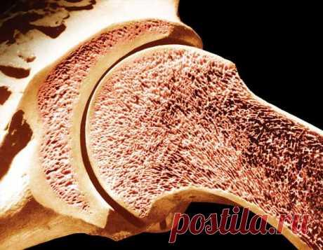 «Питание для костей»: профилактика остеопороза | Краше Всех С возрастом человек вплотную сталкивается с различными хроническими заболеваниями. И одним из них является остеопороз, который поражает кости скелета. Но его можно избежать, если вовремя предпринять необходимые меры, и прежде всего нужно изменить режим питания. В повседневное меню следует включить продукты, богатые веществами, которые делают кости более плотными и крепкими. Наиболее важными элементами для здоровья...
