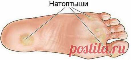Simple recipes for elimination natoptyshy, cracks, callosities, a vascular grid and varicosity