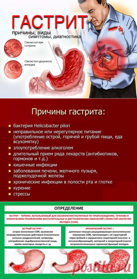 Гастрит - Доктор Натуропатии Хаим Лейбиман