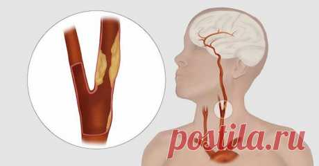 За несколько дней до инсульта организм посылает эти 8 сигналов Инсульт является очень распространенным заболеванием, и, по оценкам, затрагивает около 200000 россиян ежегодно. Помимо потенциально смертельного исхода, инсульт может вызвать необратимые повреждения. Это расстройство вызывается прерыванием кровотока в одной области мозга, что приводит к потере некоторой способности, связанной с... Читай дальше на сайте. Жми подробнее ➡