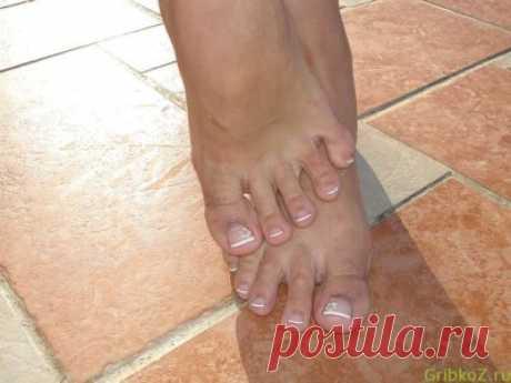 Заразен ли грибок ногтей на руках — Грибок360  Заразен ли грибок ногтей? Развитие грибка ногтей происходит при наличии сниженного иммунитета у человека. ... Отвечая на вопрос, заразен ли грибок ногтей на руках, можно сказать, что нет. Наличие заболевания такой природы не опасно для окружающих. Человек, страдающий грибком рук