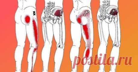 Если у тебя воспаление седалищного нерва, воспользуйся ЭТИМ средством для его лечения! В последние годы от неврологических заболеваний страдает всё больше людей. Больные нередко жалуются на тянущие боли в спине, пояснице и области ягодиц. Неприятные ощущения могут опускаться к ногам. Ишиас — это очень неприятное заболевание, связанное с защемлением и воспалением седалищного нерва в пояснично-крестцовом отделе позвоночника. Некоторые врачи называют этот недуг пояснично-крестцовым радикулитом, ил