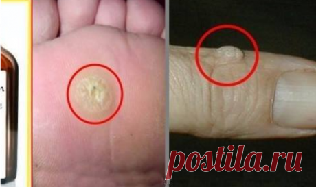 How to remove warts and papilloma by means of simple means ~