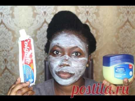 I APPLIED COLGATE TOOTHPASTE & VASELINE ON MY FACE, THIS IS WHAT HAPPENED AFTER
