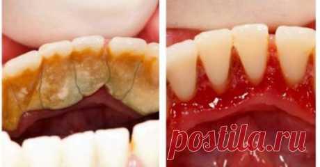 Дантисти вам цього не скажуть: Є один спосіб щоб позбутися від зубного каменю самому і вдома! Це неймовірно простий і дешевий спосіб позбутися від зубного каменю, який на відміну від хімічних препаратів не шкодить зубам, а
