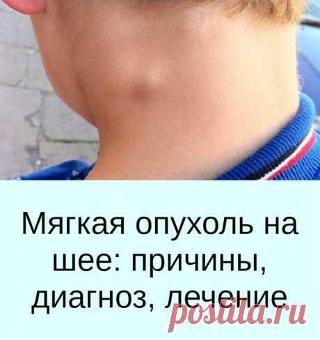 Мягкая опухоль на шее: причины, диагноз, лечение