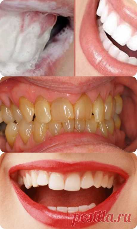 Как избавиться от зубного камня и осветлить пожелтевшую эмаль - interesno.win