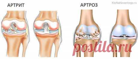 Артроз — что это такое, какие суставы чаще страдают (коленный, тазобедренный) и возможно ли лечение артроза | KtoNaNovenkogo.ru
