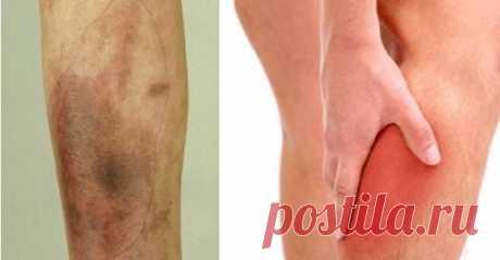 9 проблем со здоровьем ног, которые могут сигнализировать о серьезной болезни В какой-то момент в жизни каждый испытал незначительные проблемы со здоровьем ног, таких как мышечные судороги. Часто мы сталкиваемся с этими проблемами во время занятий спортом. Тем не менее, бывают …