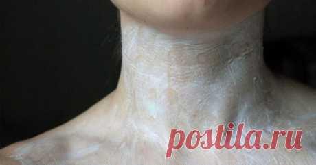 Сделайте это и ваша шея не выдаст ваш возраст  Что выдает наш возраст: складки и морщины на шее и, как это не печально, начинающий терять контур подбородок! Вам позаботиться о красоте шеи и для этого есть отличные домашние средства, которые разгл…