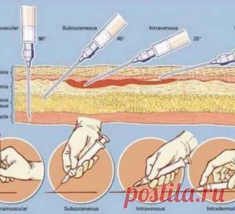 Как правильно делать инъекции? Сохраните себе эту важную информацию! Внутримышечную инъекцию рекомендуется делать в наиболее крупные мышцы в местах, отдаленных от основных кровеносных сосудов и нервов