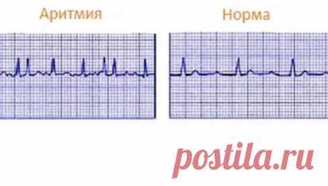 Как успокоить сердце при аритмии | Делимся советами