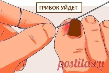 Избавиться от микоза ногтей можно быстро и просто, если знаешь этот супер эффективный рецепт!