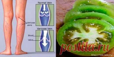 Как можно вылечить варикозное расширение вен 2 помидорами?