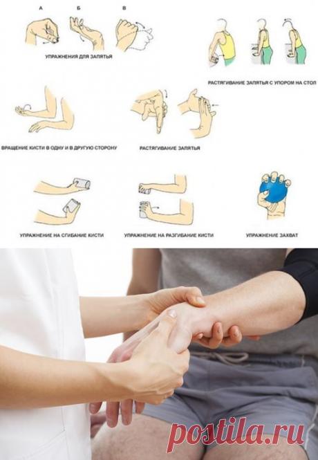 Реабилитация после перелома лучевой кости руки в домашних условиях, упражнения