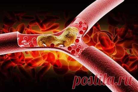 """25 фактов, которые нужно знать о холестерине... - Познавательный сайт ,,1000 мелочей"""" - медиаплатформа МирТесен Если вы считаете что холестерин – это вредное вещество, которое содержится в жирных продуктах и вызывает различные заболевания, то эта статья для вас. Органическая молекула намного сложнее, чем мы думаем. С химической точки зрения холестерин является модифицированным стероидом - липидной молекулой,"""