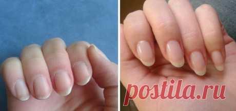 Как быстро отрастить ногти, которые никогда не сломаются - Советы и Рецепты