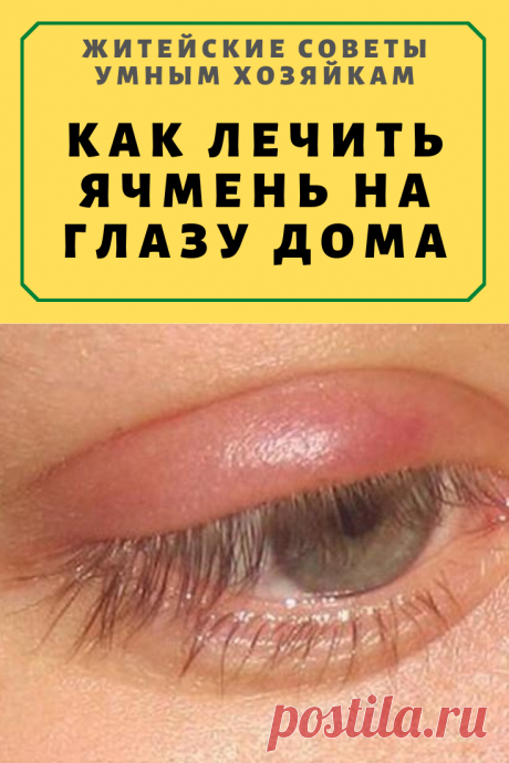 Как лечить ячмень на глазу дома народными средствами и лекарственными препаратами | Житейские Советы