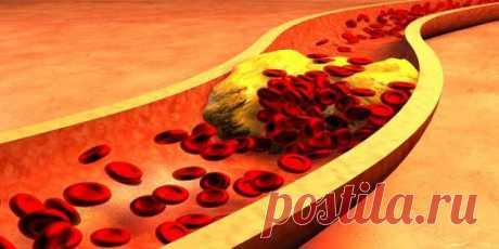 6 ингредиентов, которые очень эффективно борются с холестерином! ВОПРОСЫ-ОТВЕТЫ