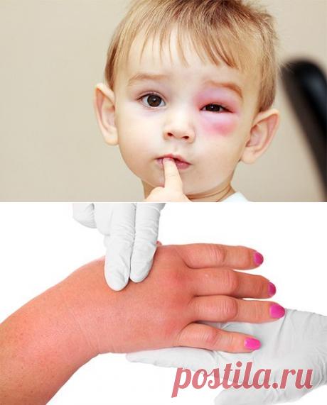 Что делать, если укусила оса или пчела: первая помощь, чем обработать и снять отек, тревожные симптомы аллергии — Бабушкины секреты