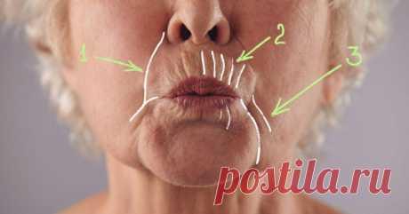 Как убрать глубокие морщины вокруг рта: 5 домашних масок, творящих чудеса с увядающей кожей. Изменения заметят все. - Все обо Всем