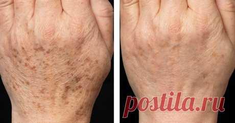6 действенных средств для борьбы с пигментными пятнами - Женский Журнал  Меланоциты — это клетки, которые отвечают за основную пигментацию кожи человека. Они вырабатывают самый главный и темный пигмент кожи — меланин. Но случается такое, что по некоторым причинам в определенных местах меланоциты вырабатывают меланин в избытке и это приводит к образованию разнообразныхпигментных пятен. Именно таким образом у нас появляются все темные пятна на лице …
