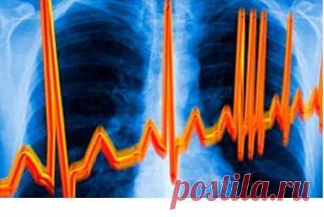 Recipes of traditional medicine from cardiac arrhythmia \u000aEvery sixth has heart troubles of Russians. How to relieve cardiac pains and to restore a warm rhythm? Here several recipes of traditional medicine, but, nevertheless, before using these owls …