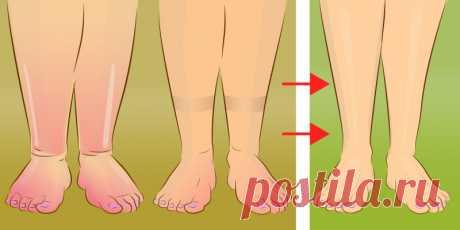 Опухшие ноги далеко в прошлом. Этот простой трюк поможет избавиться от отеков. Читать далее...