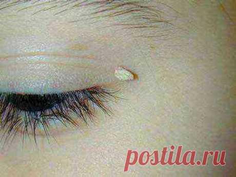 Ацикловир мазь от папилломы на глазу. Препараты против папилломы