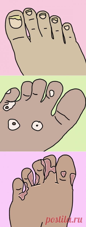 Как справиться с самыми распространенными проблемами ног