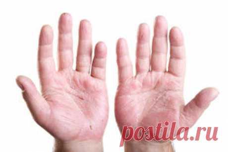 Самое эффективное лечение экземы на руках