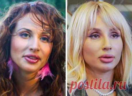 Российские знаменитости которые изменились до неузнаваемости (11 фото) . Тут забавно !!!
