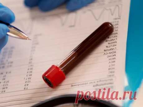 Причины высокого билирубина Билирубин представляет собой желчный пигмент, образующийся при распаде гемоглобина. Повышение содержания билирубина в крови носит название гипербилирубинемия. Её главное проявление — желтуха — возникает тогда, когда показатель общего билирубина поднимается до 40-70 мкмоль/л.