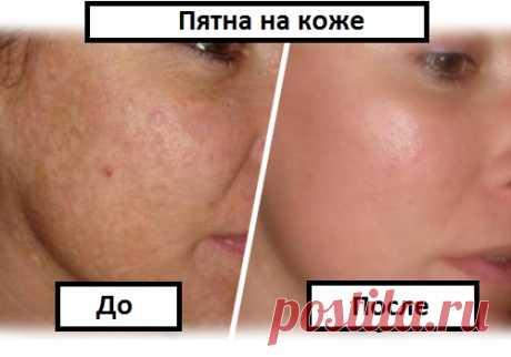 Как избавиться от дефектов кожи? - Шаг к Здоровью