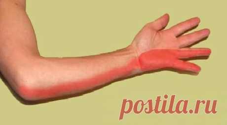 Как справиться с травмой лучевого нерва Лучевой нерв.Если вы положите палец на нижнюю часть предплечья, проведите вдоль руки вверх, мимо трицепсов и до подмышки, значит, вы только что прошли по пути радиального нерва