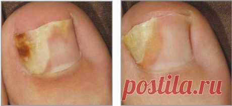 Йод против грибка ногтей: как избавиться от недуга всего за несколько процедур С грибковой инфекцией на ногтях сталкиваются многие. В медицине это неприятное явление называется онихомикозом или микозом ногтя. Его лечат специальными препаратами и подручными медикаментами. Так, ра…