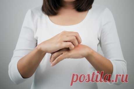 Контактный дерматит - лечение и профилактика