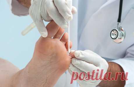 Лечение грибка ногтей и стоп Лечение грибковых заболеваний должно проходить под наблюдением дерматолога. Неправильно подобранные противогрибковые средства могут привести лишь к временному улучшению, не вылечив само заболевание.
