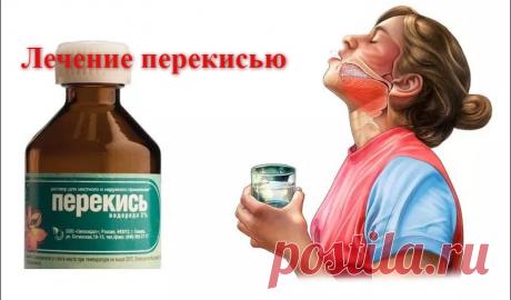 Быстрая остановка кровотечения и дезинфекция с помощью 1 простого ингредиента