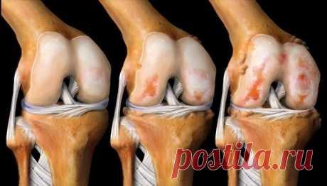 Лечит колени, восстанавливает кости и суставы!