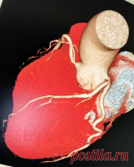 Пять главных врагов нашего сердца | Советы израильского кардиолога | Яндекс Дзен