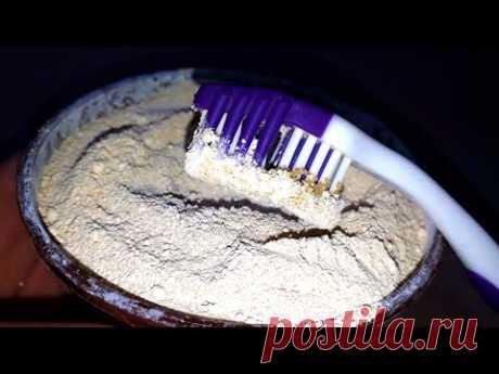 ПОЧЕМУ стоматологи об этом МОЛЧАТ!!! Зажили дёсны и отбелились зубы, ЗА КОПЕЙКИ чудо средство.